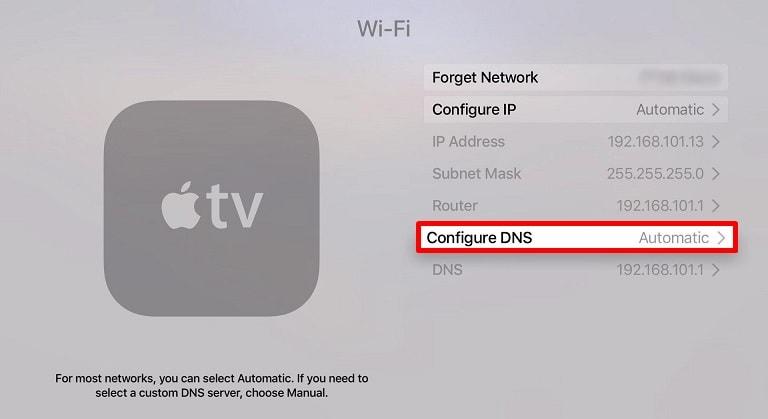 Apple Konfigurasi dns TV
